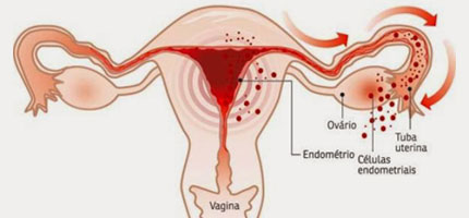 Demonstrando a endometrióse