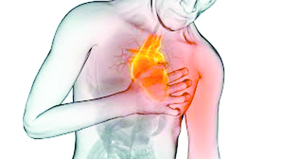 Infarto ou parada cardíaca