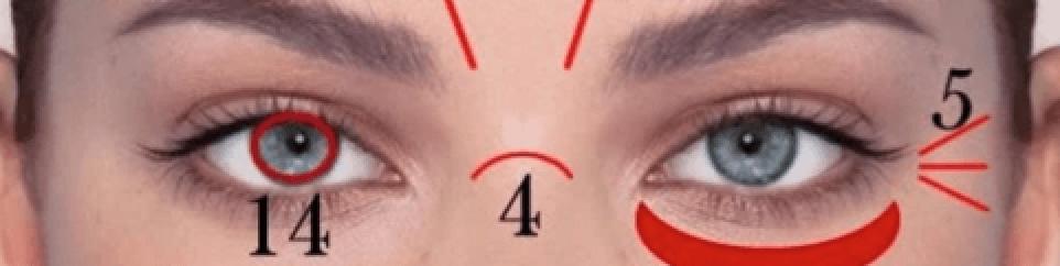 Linha horizontal profunda no começo do nariz.