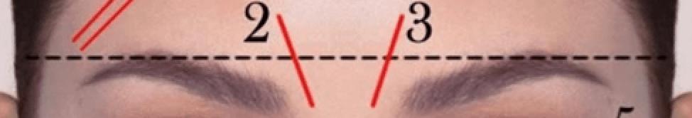 Linha vertical entre sobrancelhas.