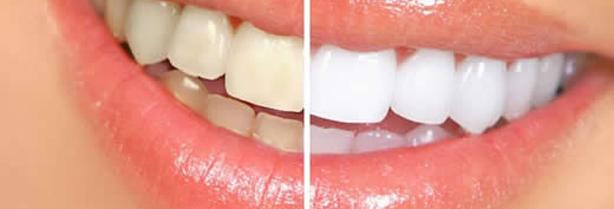 Dentes brancos, antes e depois.