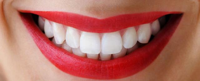 Dentes brancos.