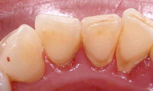 Tártaro na base dos dentes.