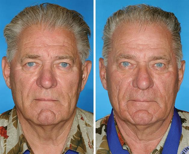 Irmãos gêmeos, porem o da direita fumou 14 anos a mais que o da esquerda.