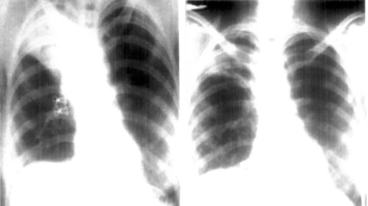 Raio-x de pulmão com camisinha